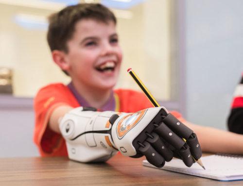 Hero Arm – Ruka od junaka, bionička ruka koja pomaže kod invaliditeta